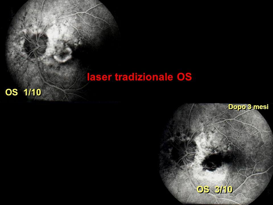 laser tradizionale OS Dopo 3 mesi OS 1/10 OS 3/10