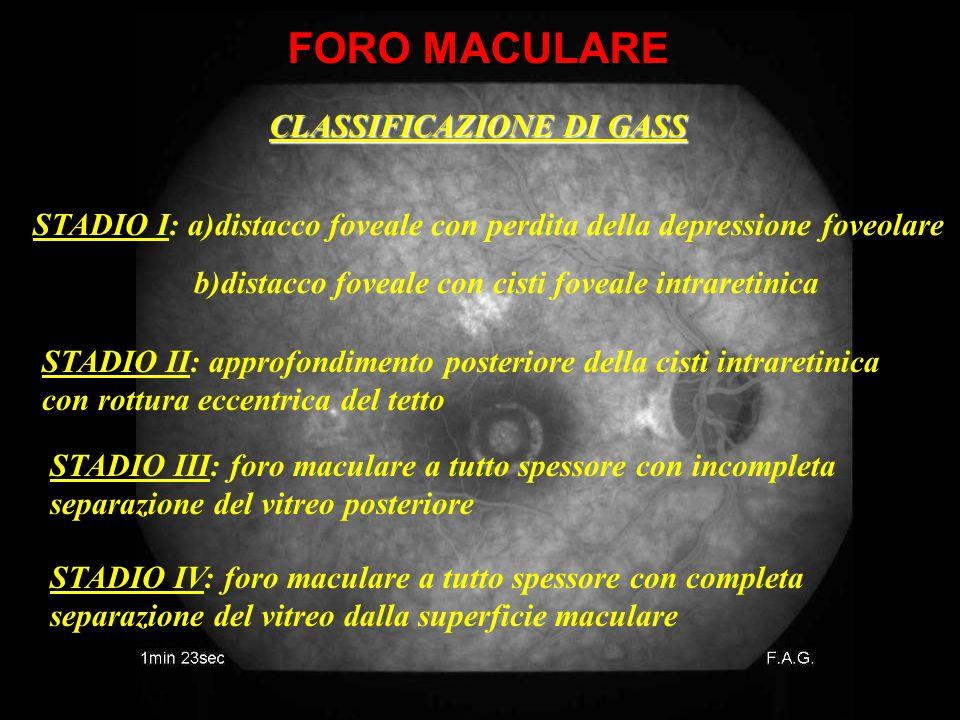 CLASSIFICAZIONE DI GASS STADIO I: a)distacco foveale con perdita della depressione foveolare b)distacco foveale con cisti foveale intraretinica STADIO