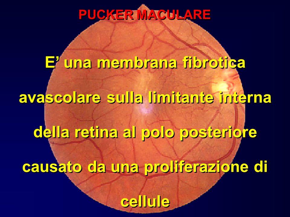 E una membrana fibrotica avascolare sulla limitante interna della retina al polo posteriore causato da una proliferazione di cellule PUCKER MACULARE