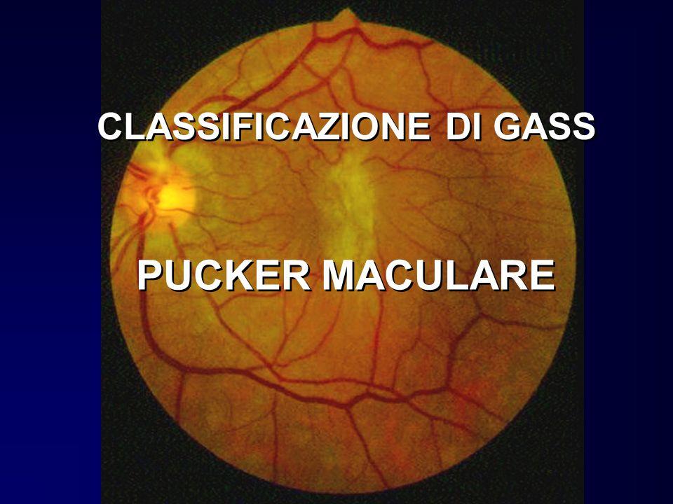 CLASSIFICAZIONE DI GASS PUCKER MACULARE