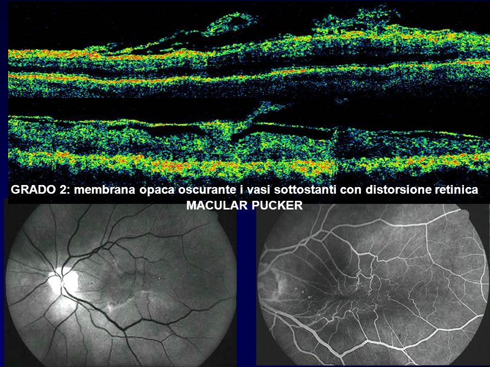 GRADO 2: membrana opaca oscurante i vasi sottostanti con distorsione retinica MACULAR PUCKER