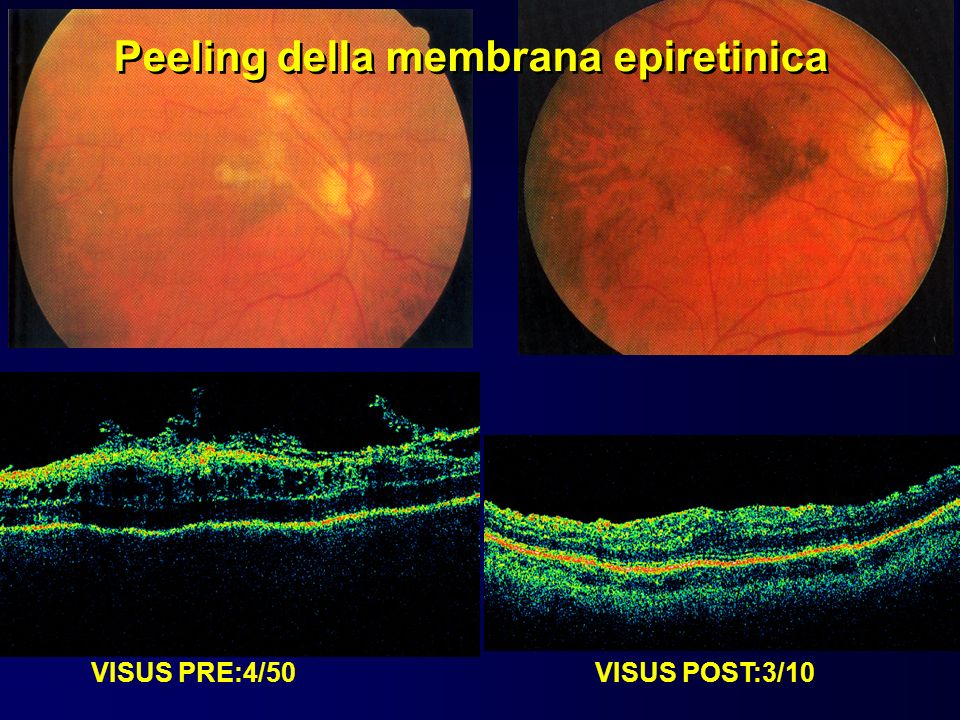 VISUS PRE:4/50 VISUS POST:3/10 Peeling della membrana epiretinica