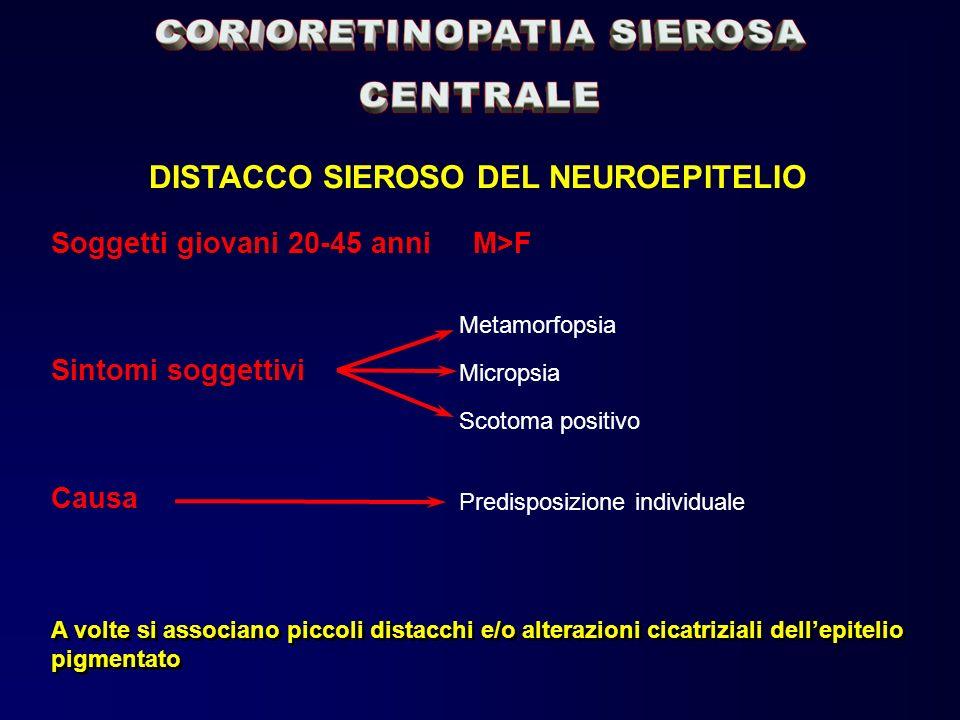 DISTACCO SIEROSO DEL NEUROEPITELIO Soggetti giovani 20-45 anni M>F Sintomi soggettivi Metamorfopsia Micropsia Scotoma positivo Causa Predisposizione i