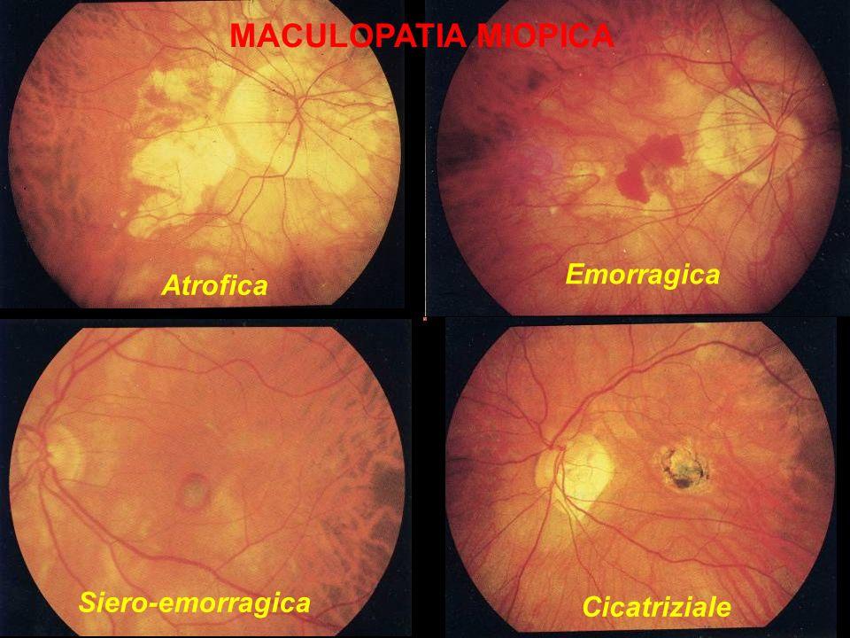 MACULOPATIA MIOPICA Atrofica Emorragica Siero-emorragica Cicatriziale