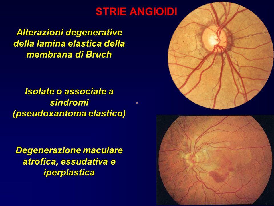 STRIE ANGIOIDI Emorragica Alterazioni degenerative della lamina elastica della membrana di Bruch Isolate o associate a sindromi (pseudoxantoma elastic