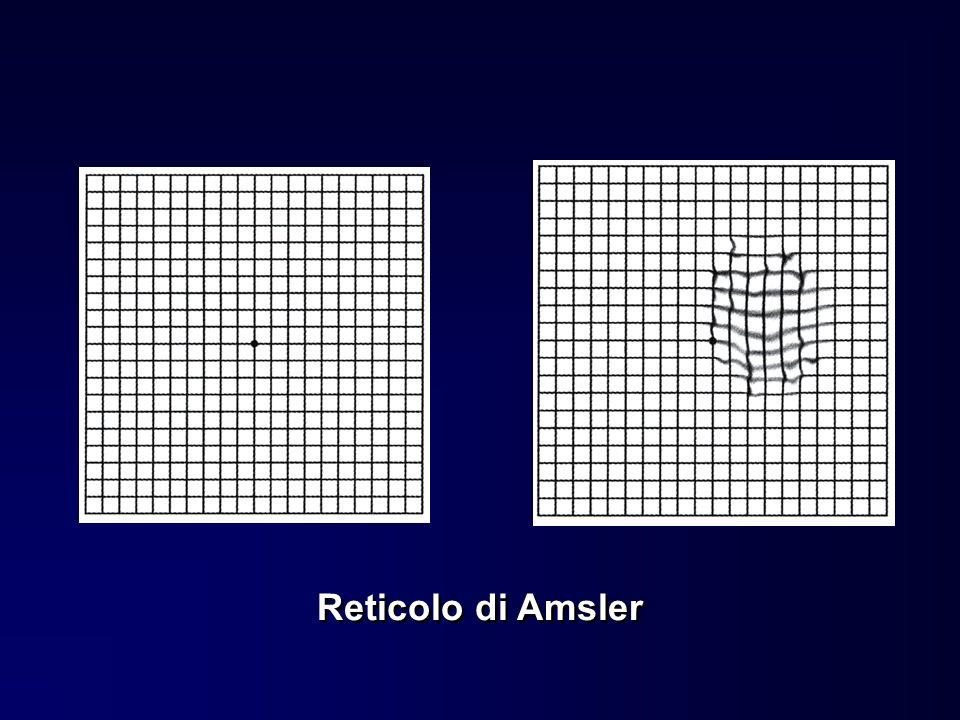 Reticolo di Amsler