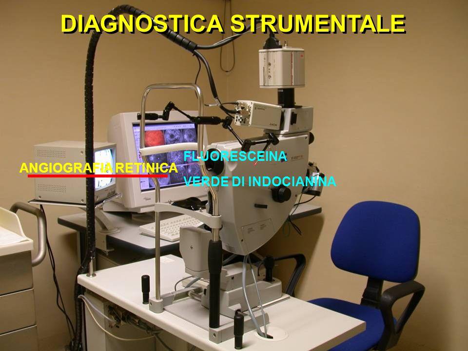 DIAGNOSTICA STRUMENTALE ANGIOGRAFIA RETINICA FLUORESCEINA VERDE DI INDOCIANINA