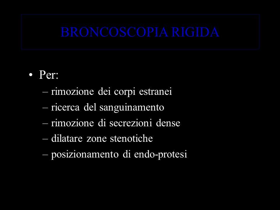 BRONCOSCOPIA RIGIDA Per: –rimozione dei corpi estranei –ricerca del sanguinamento –rimozione di secrezioni dense –dilatare zone stenotiche –posizionam