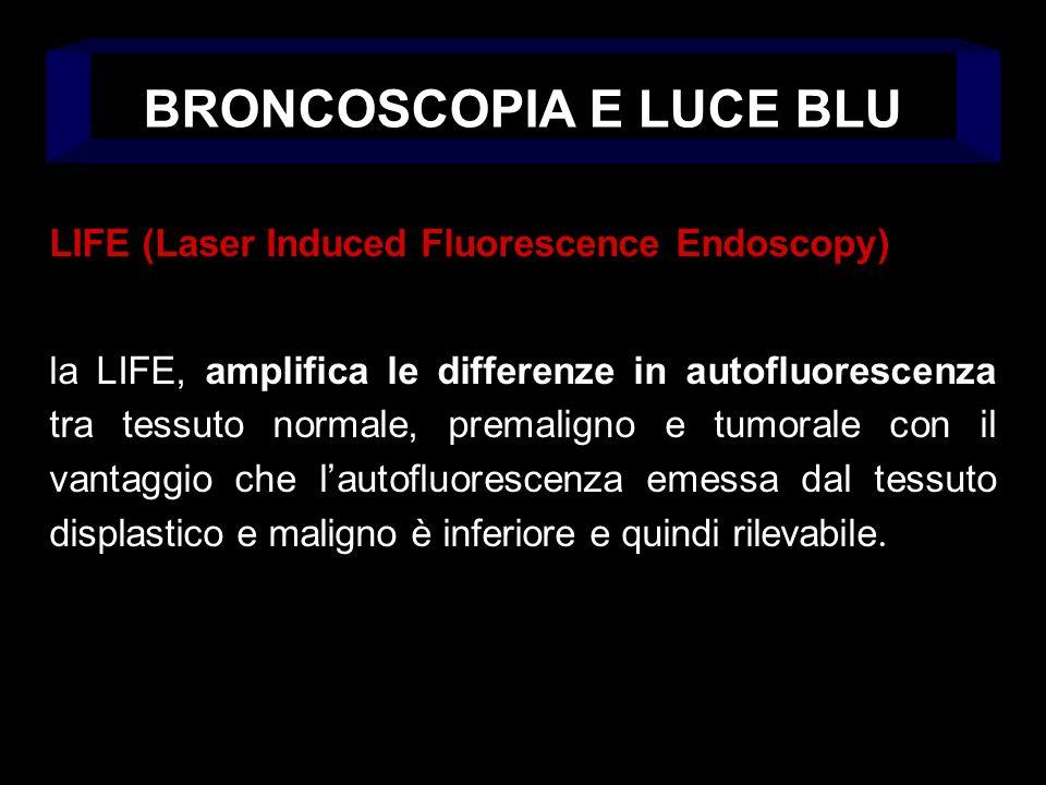 LIFE (Laser Induced Fluorescence Endoscopy) la LIFE, amplifica le differenze in autofluorescenza tra tessuto normale, premaligno e tumorale con il vantaggio che lautofluorescenza emessa dal tessuto displastico e maligno è inferiore e quindi rilevabile.