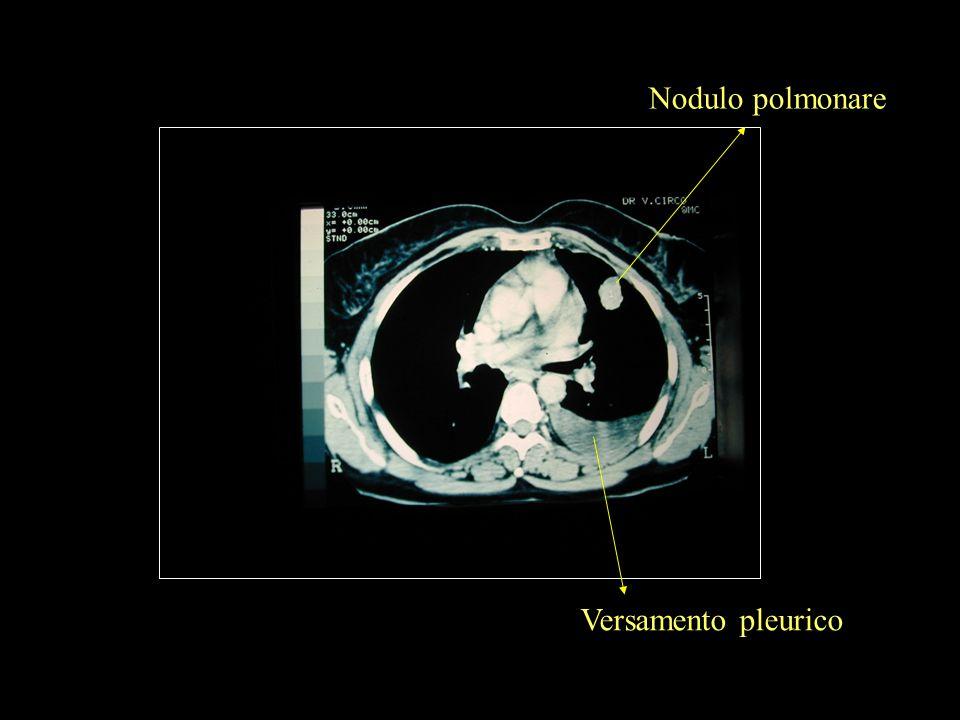 Versamento pleurico Nodulo polmonare