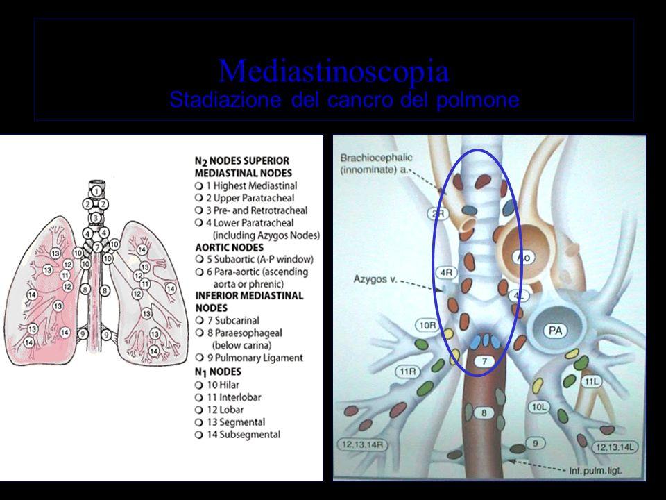 Mediastinoscopia Stadiazione del cancro del polmone