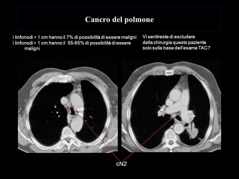 Cancro del polmone cN2 Vi sentireste di escludere dalla chirurgia questo paziente solo sulla base dellesame TAC? i linfonodi < 1 cm hanno il 7% di pos
