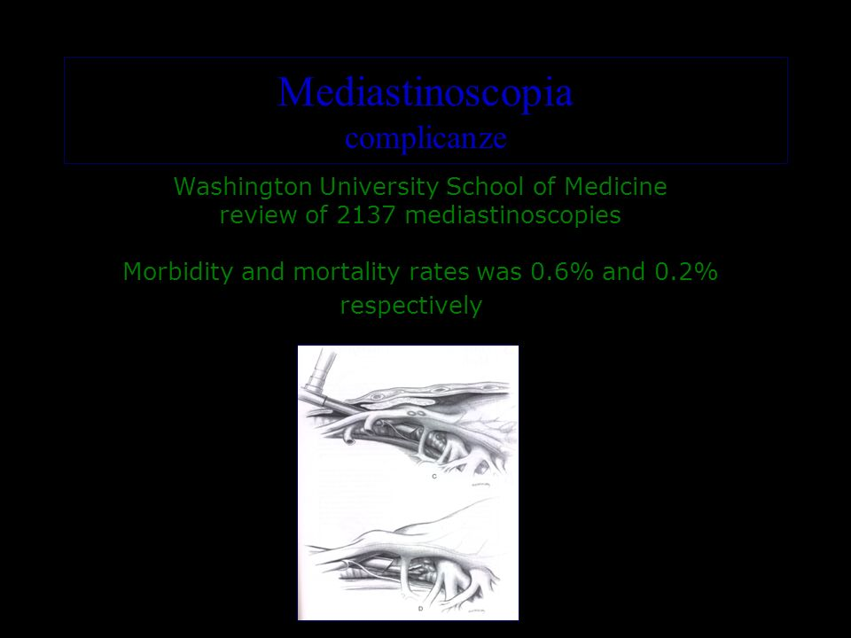 Washington University School of Medicine review of 2137 mediastinoscopies Morbidity and mortality rates was 0.6% and 0.2% respectively