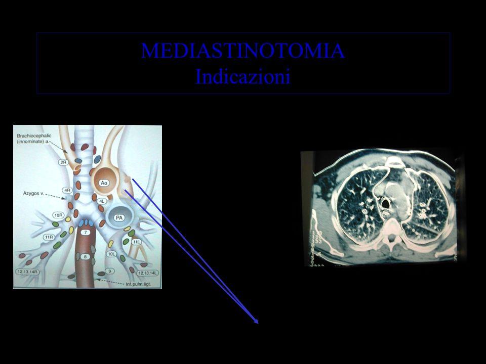 MEDIASTINOTOMIA Indicazioni Linfonodi non raggiungibili con la MDS