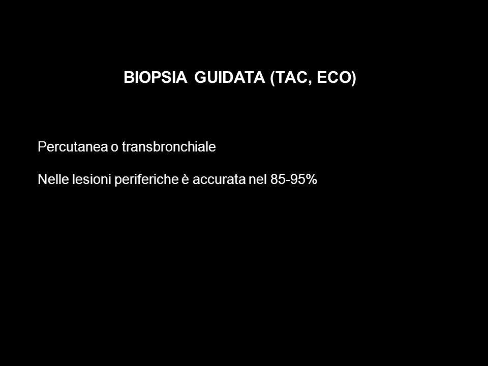BIOPSIA GUIDATA (TAC, ECO) Percutanea o transbronchiale Nelle lesioni periferiche è accurata nel 85-95%