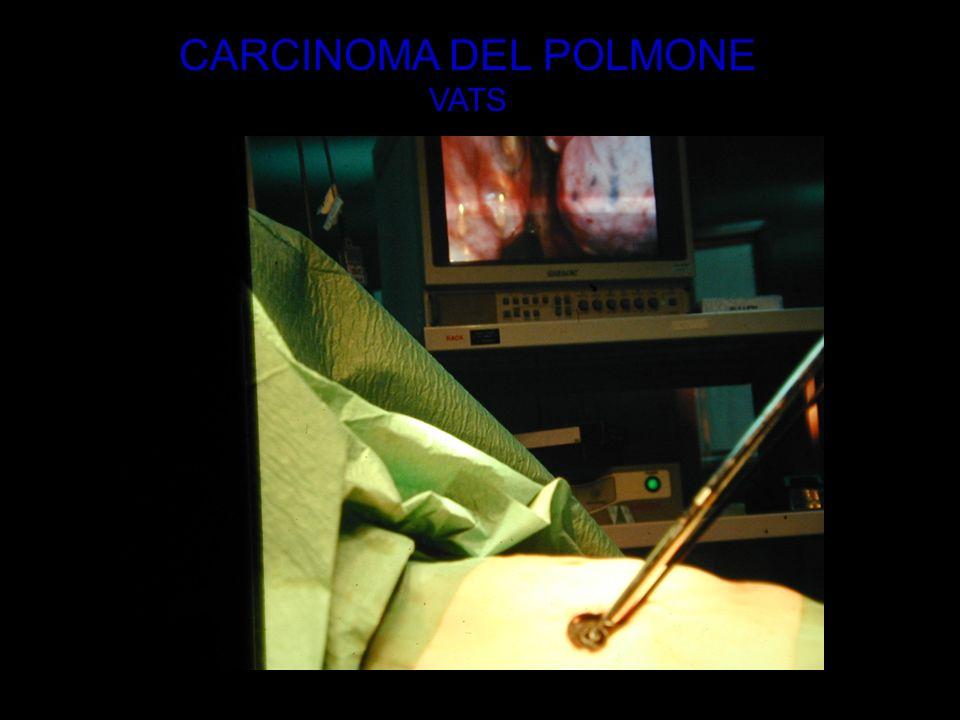CARCINOMA DEL POLMONE VATS