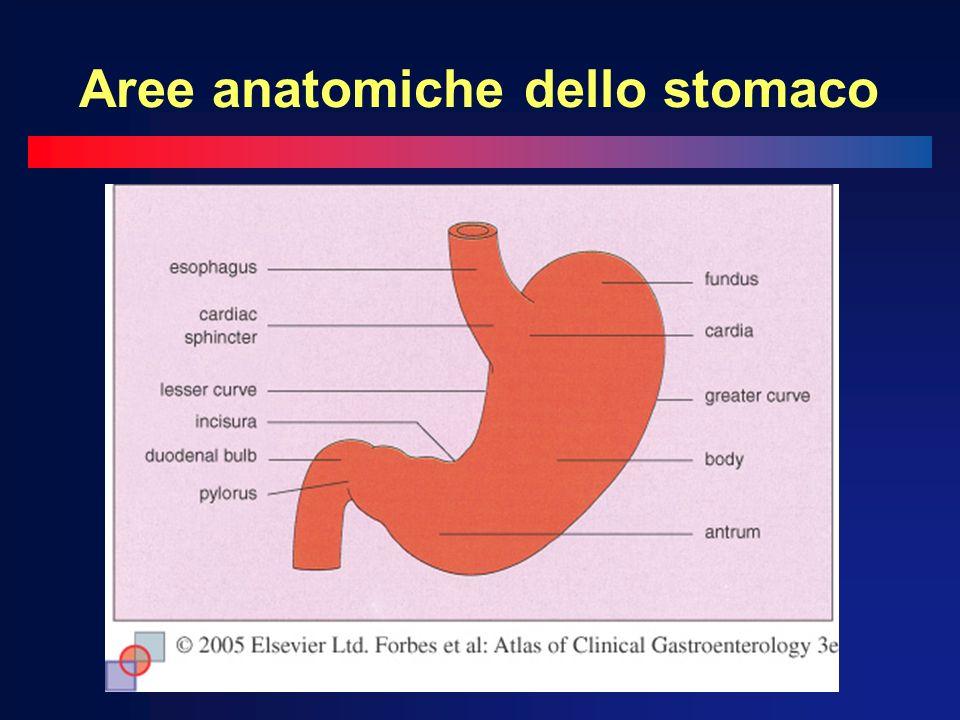 Aree anatomiche dello stomaco