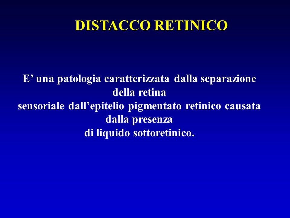 DISTACCO RETINICO E una patologia caratterizzata dalla separazione della retina sensoriale dallepitelio pigmentato retinico causata dalla presenza di liquido sottoretinico.