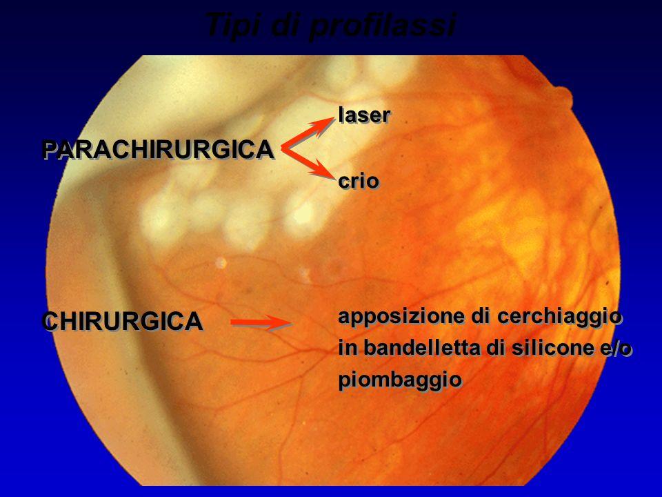 Tipi di profilassi PARACHIRURGICA laser crio apposizione di cerchiaggio in bandelletta di silicone e/o piombaggio CHIRURGICA
