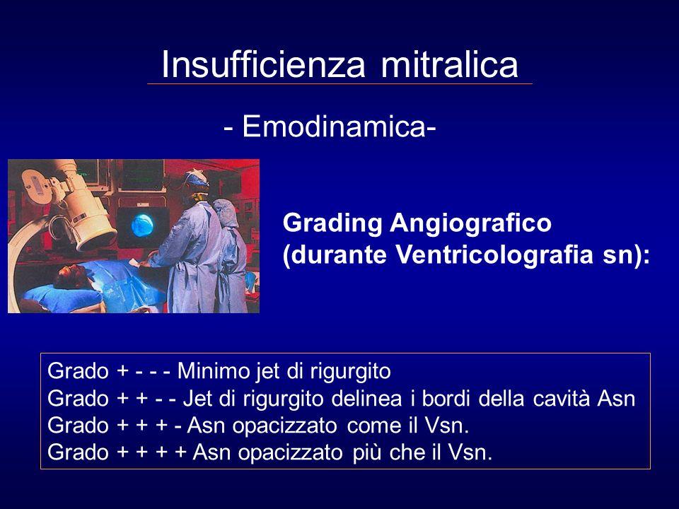 Indicazioni all Ecocardiografia transtoracica nell insufficienza mitralica Per quantificare la severità della IM e la funzione del ventricolo sn nei pazienti con sospetto clinico di malattia.