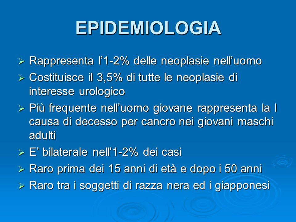 Picco di Incidenza dei diversi tipi di neoplasia del testicolo in funzione delletà Bambinineoplasie del sacco vitellino Bambinineoplasie del sacco vitellino 20-30 annicorioncarcinoma 20-30 annicorioncarcinoma 25-35 anniteratocarcinoma 25-35 anniteratocarcinoma o carcinoma embrionale 30-40 anniseminoma 30-40 anniseminoma >50 anniseminoma spermatocitario, >50 anniseminoma spermatocitario, linfoma maligno