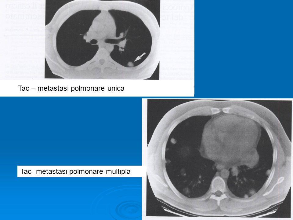 Tac – metastasi polmonare unica Tac- metastasi polmonare multipla