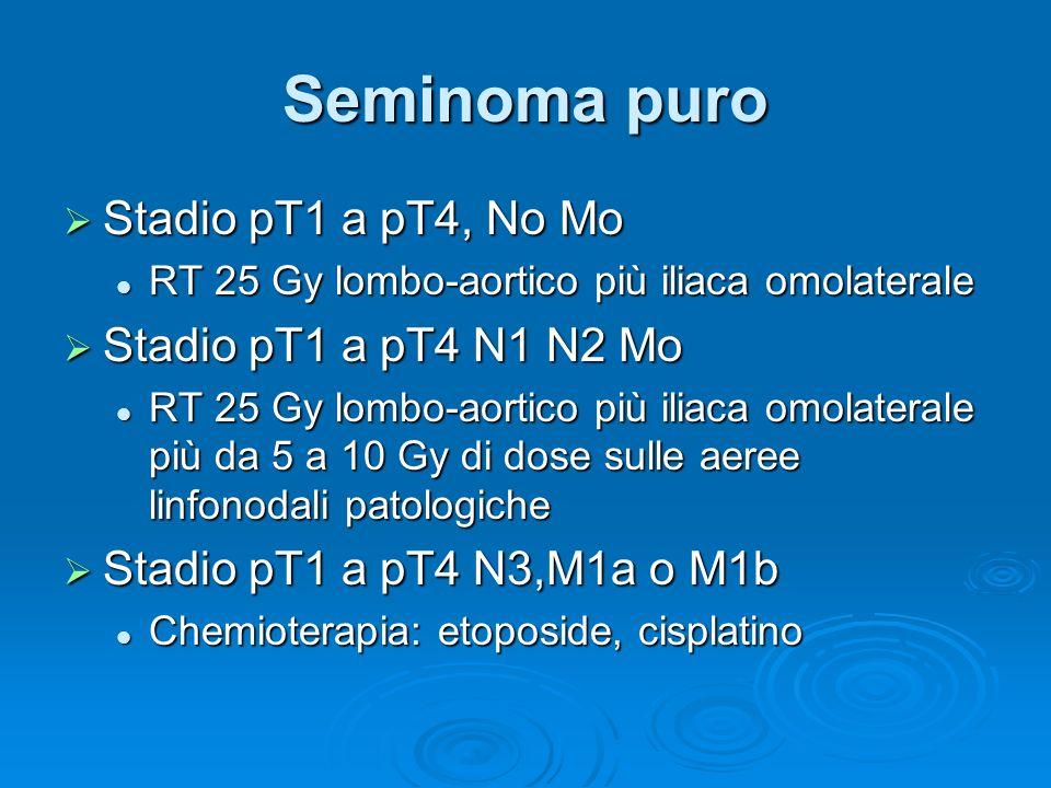 Seminoma puro Stadio pT1 a pT4, No Mo Stadio pT1 a pT4, No Mo RT 25 Gy lombo-aortico più iliaca omolaterale RT 25 Gy lombo-aortico più iliaca omolater