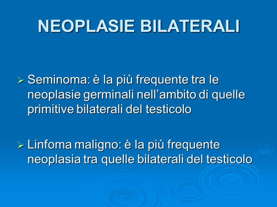 NEOPLASIE BILATERALI Seminoma: è la più frequente tra le neoplasie germinali nellambito di quelle primitive bilaterali del testicolo Seminoma: è la pi