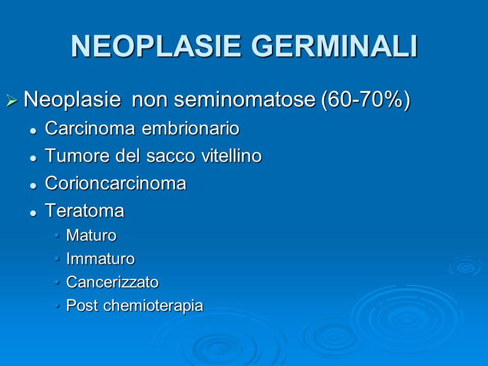 NEOPLASIE NON GERMINALI Neoplasia dello stroma gonadico Neoplasia dello stroma gonadico Neoplasia cellula di LeydigNeoplasia cellula di Leydig Neoplasia delle cellule del SertoliNeoplasia delle cellule del Sertoli Neoplasia della granulosaNeoplasia della granulosa Neoplasia incompletamente differenziataNeoplasia incompletamente differenziata Neoplasia contenente cellule germinali e stroma gonadico Neoplasia contenente cellule germinali e stroma gonadico