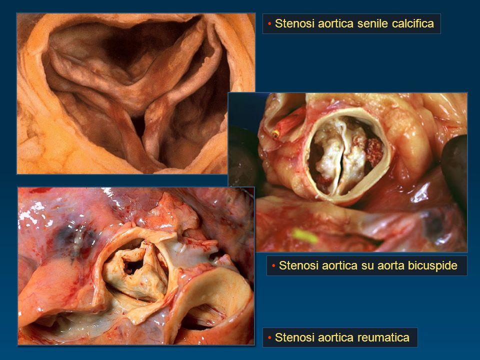 Stenosi aortica senile calcifica Stenosi aortica reumatica Stenosi aortica su aorta bicuspide