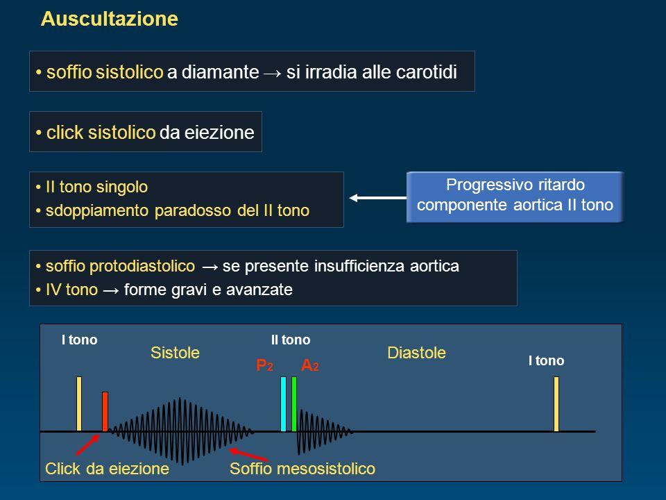 Auscultazione soffio protodiastolico se presente insufficienza aortica IV tono forme gravi e avanzate II tono singolo sdoppiamento paradosso del II to