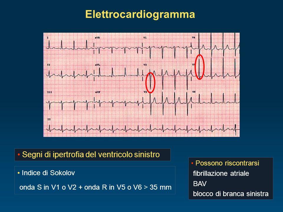 Elettrocardiogramma Segni di ipertrofia del ventricolo sinistro Possono riscontrarsi fibrillazione atriale BAV blocco di branca sinistra Indice di Sok