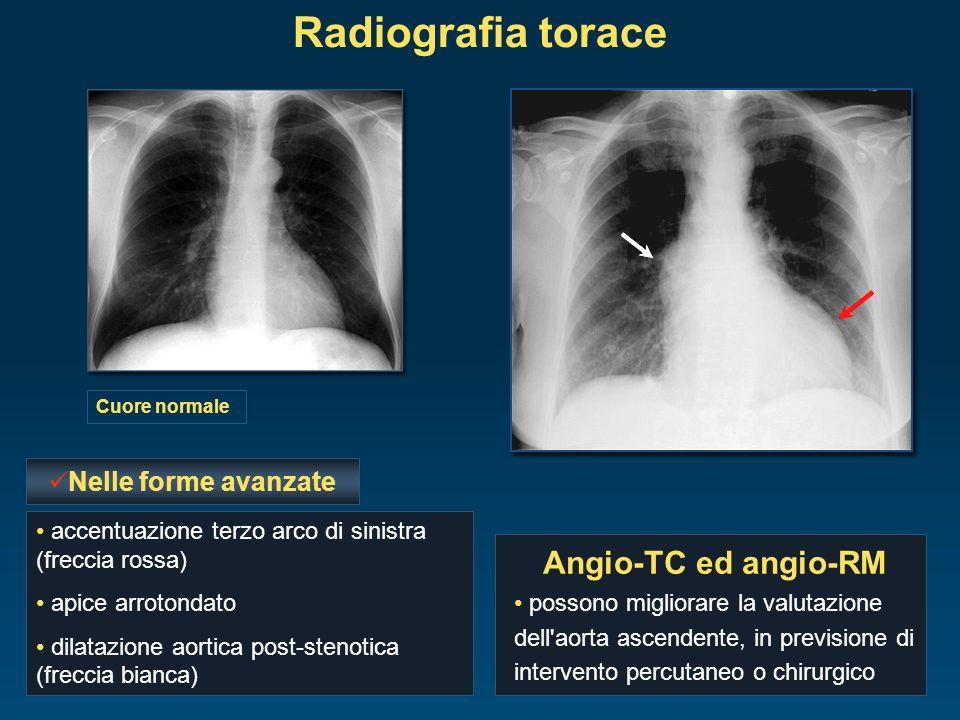 Radiografia torace Cuore normale eventuale calcificazione valvolare congestione polmonare accentuazione terzo arco di sinistra (freccia rossa) apice a