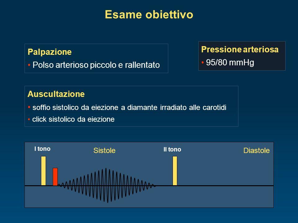 Elettrocardiogramma segni di ingrandimento ventricolare sinistro