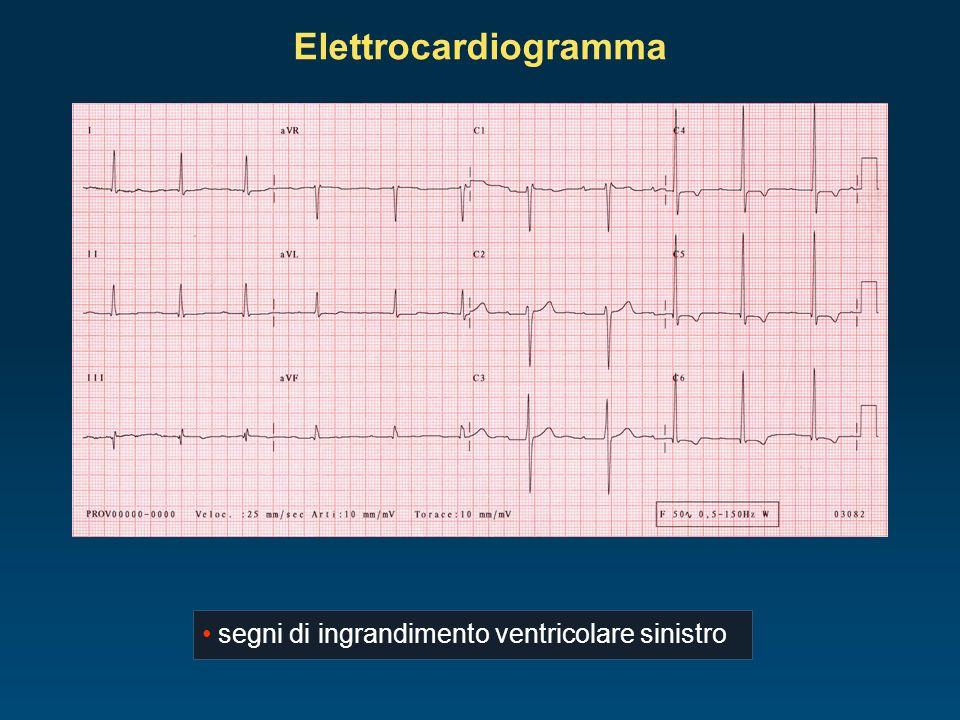 Ecocardiogramma ventricolo sinistro severamente ipertrofico, FE 40% atrio sinistro nella norma, cavità destre nella norma Grad max 80 mmHg Grad medio 53 mmHg AVA 0,6 cm² valvola aortica con cuspidi calcifiche, marcatamente ipomobili, determinanti stenosi di grado severo mitrale, tricuspide e polmonare senza alterazioni di rilievo