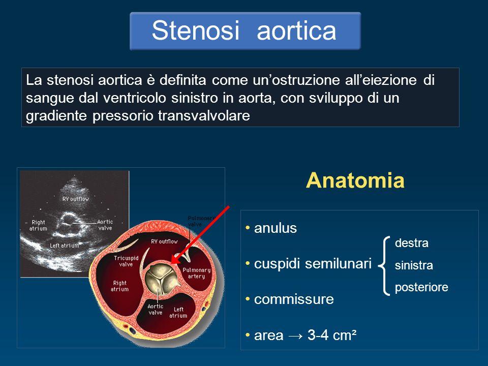 La stenosi aortica si distingue, in relazione alla sede in cui si verifica lostruzione, in: Stenosi aortica valvolare Sottovalvolare ostruzione nel tratto di efflusso ventricolare Valvolare ostruzione a livello della valvola Sopravalvolare ostruzione in aorta malattia congenita miocardiopatia ipertrofica ostruzione fibromuscolare congenita