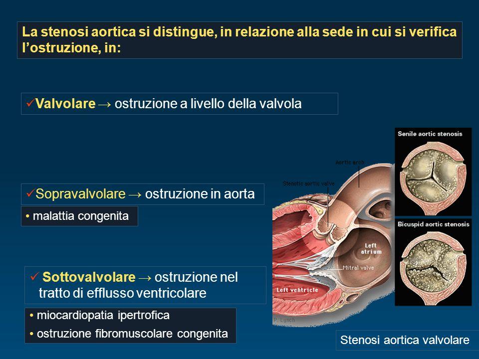 La stenosi aortica si distingue, in relazione alla sede in cui si verifica lostruzione, in: Stenosi aortica valvolare Sottovalvolare ostruzione nel tr