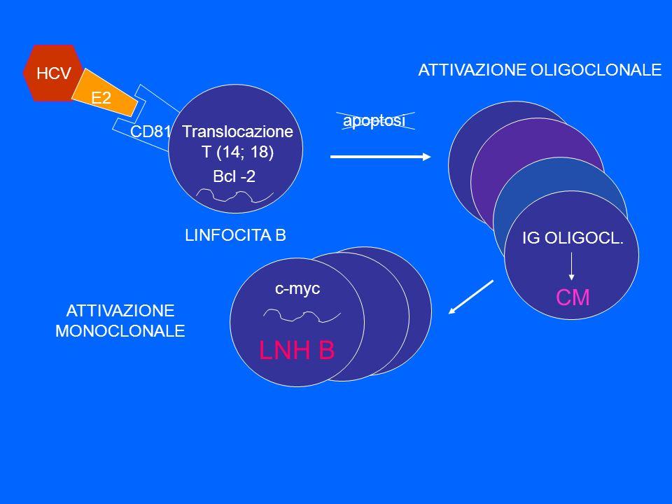 HCV E2 CD81Translocazione T (14; 18) LINFOCITA B ATTIVAZIONE OLIGOCLONALE c-myc LNH B IG OLIGOCL. CM ATTIVAZIONE MONOCLONALE apoptosi Bcl -2