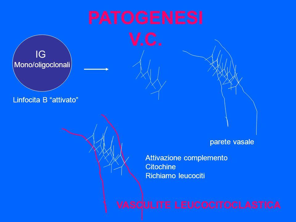 IG Mono/oligoclonali parete vasale Linfocita B attivato Attivazione complemento Citochine Richiamo leucociti VASCULITE LEUCOCITOCLASTICA PATOGENESI V.