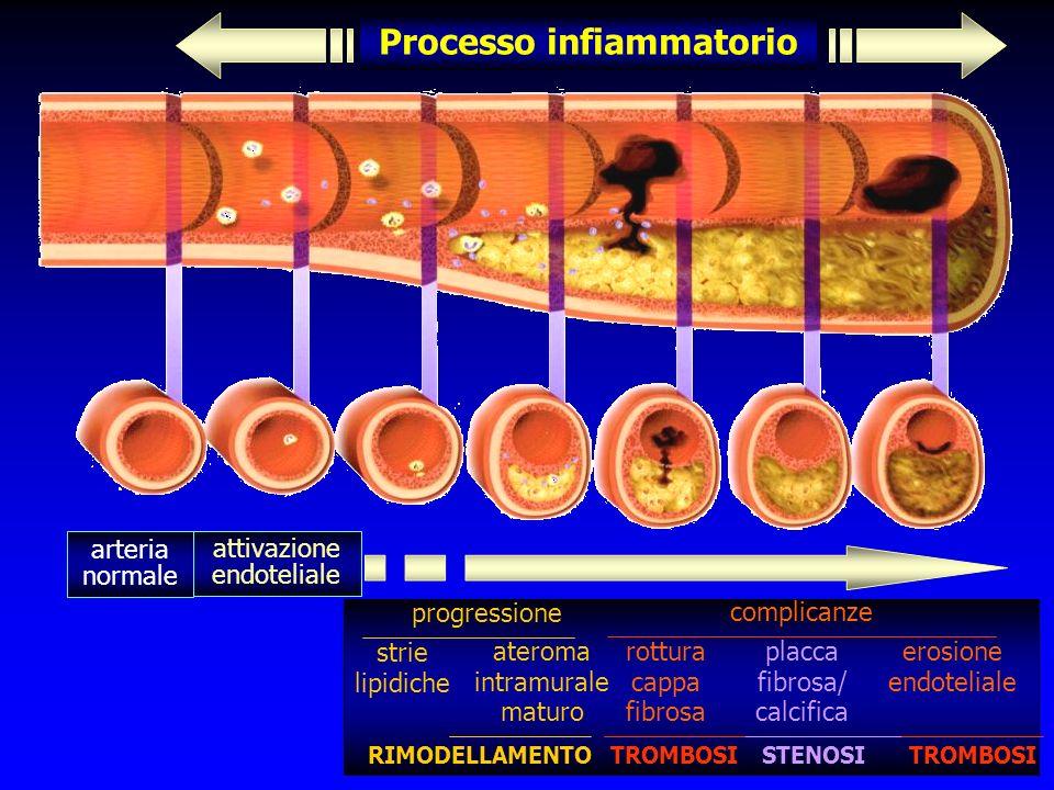Processo infiammatorio arteria normale attivazione endoteliale progressione strie lipidiche ateroma intramurale maturo complicanze rottura cappa fibrosa placca fibrosa/ calcifica erosione endoteliale STENOSITROMBOSI RIMODELLAMENTO