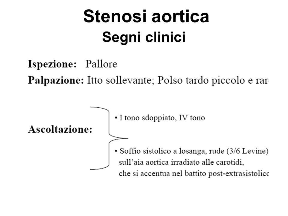 Stenosi aortica Segni clinici