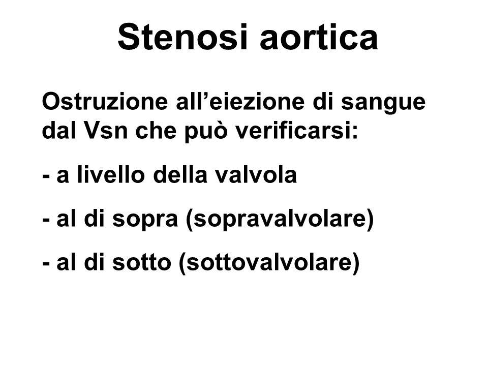 Stenosi aortica Ostruzione alleiezione di sangue dal Vsn che può verificarsi: - a livello della valvola - al di sopra (sopravalvolare) - al di sotto (