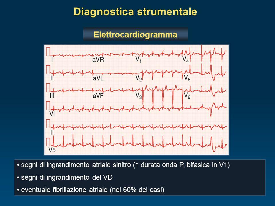 Elettrocardiogramma segni di ingrandimento atriale sinitro ( durata onda P, bifasica in V1) segni di ingrandimento del VD eventuale fibrillazione atri