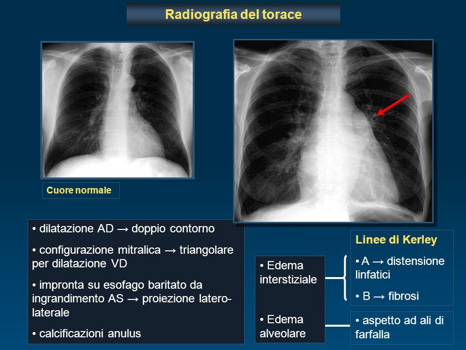 Radiografia del torace dilatazione AD doppio contorno configurazione mitralica triangolare per dilatazione VD impronta su esofago baritato da ingrandi