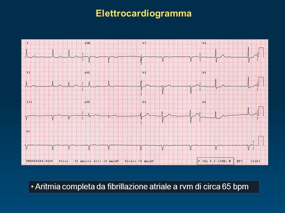 Ecocardiografia normale funzione del ventricolo sinistro (FE 60%) stenosi mitralica severa (area valvolare 1,0 cm², gradiente valvolare mitralico medio di 18,8 mmHg all ecocolor Doppler) dilatazione dell atrio sinistro (51 mm) ventricolo destro moderatamente ipertrofico lieve insufficienza della valvola tricuspide, valvole semilunari nella norma pressione media in arteria polmonare (PAPs) 52,2 mmHg