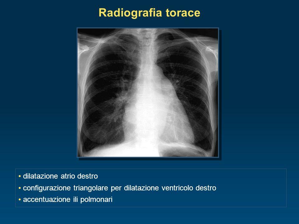 Radiografia torace dilatazione atrio destro configurazione triangolare per dilatazione ventricolo destro accentuazione ili polmonari