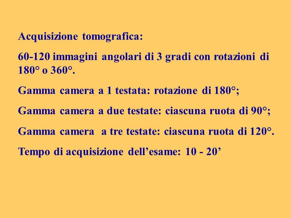 Acquisizione tomografica: 60-120 immagini angolari di 3 gradi con rotazioni di 180° o 360°. Gamma camera a 1 testata: rotazione di 180°; Gamma camera