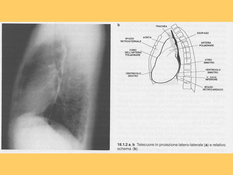 Deficit di grado severo a livello del segmento infero- laterale.