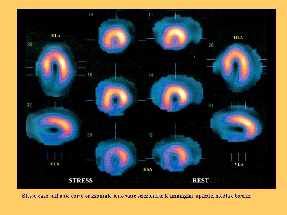 Stesso caso sullasse corto orizzontale sono state selezionate le immagini apicale, media e basale.