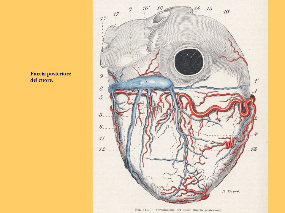 VCT con ricostruzione multiplanare curva della DA, che consente di visualizzare completamente il decorso della discendente anteriore dalla sua origine sino allapice cardiaco.